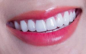 Hình thực tế khách hàng Bọc răng Sứ tại Đại Phát