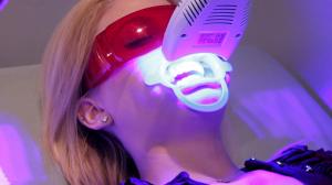 Tẩy Trắng Răng công nghệ Plasma