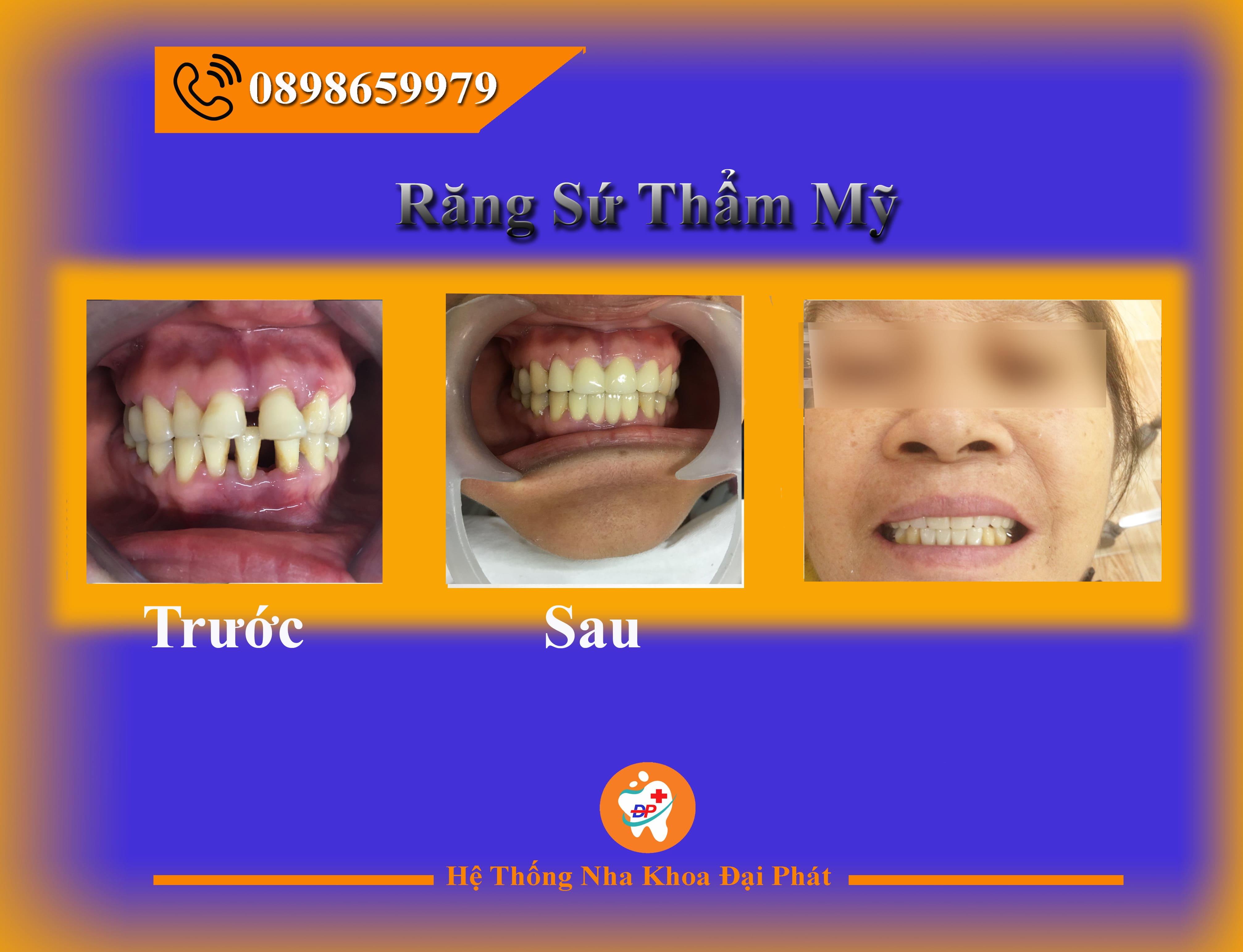 Răng Sứ Và Những Điều Có Thể Bạn Chưa Biết