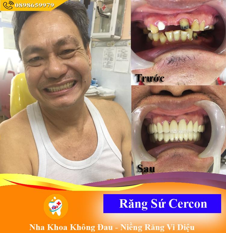Khách hàng với bộ hàm răng sứ Cercon đã tự tin cười hơn