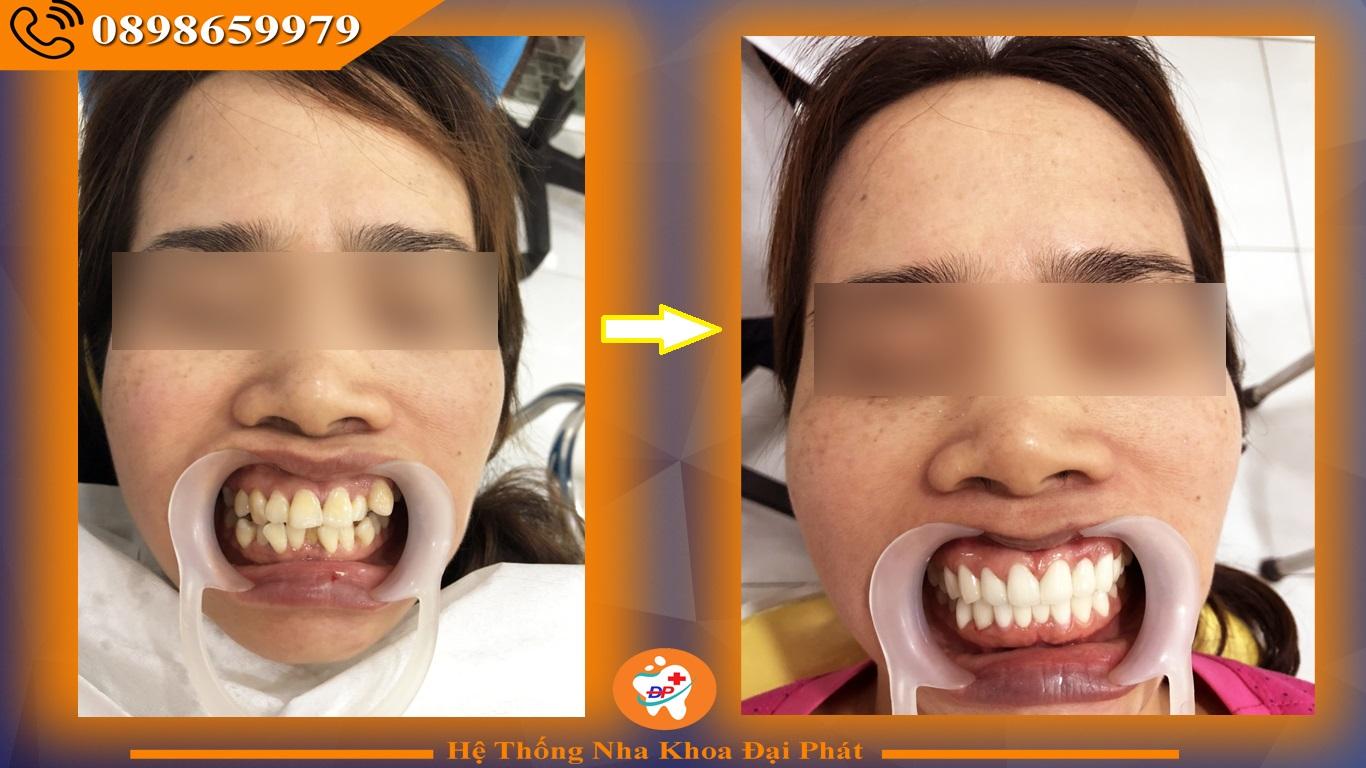 Bọc Răng Sứ ở đâu uy tín tại Biên Hòa ?
