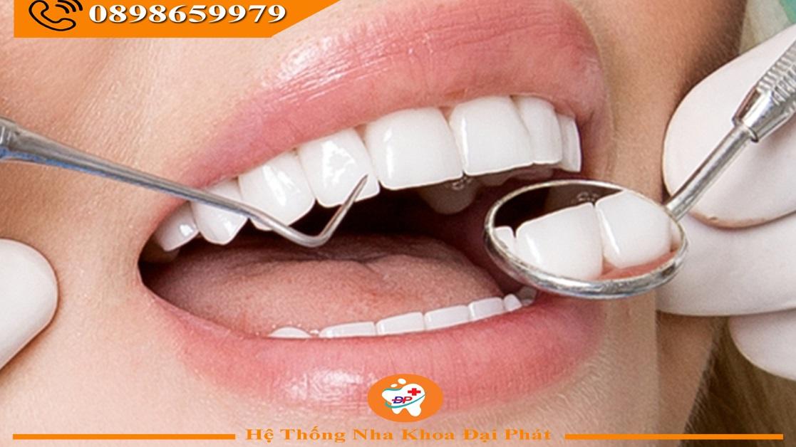 Hướng dẫn chăm sóc sức khỏe răng miệng đúng cách