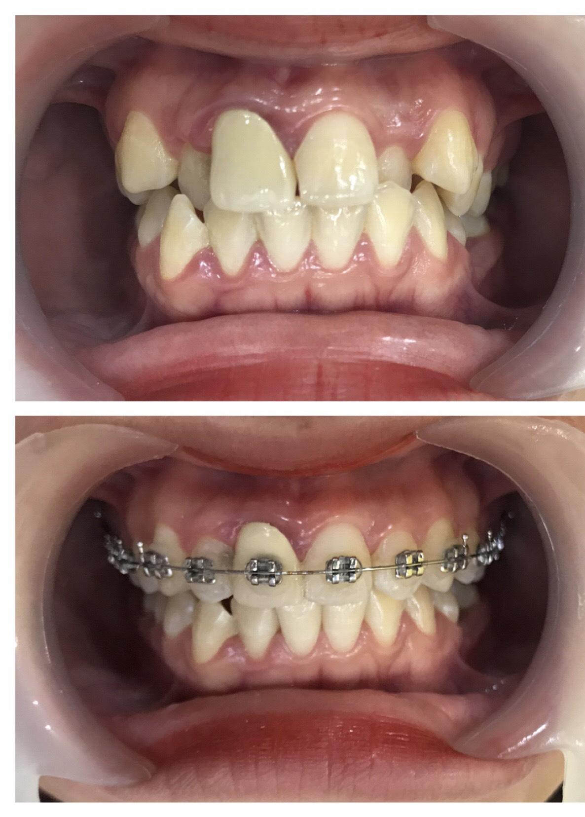 Có thể niềng răng không nhổ răng được không ?