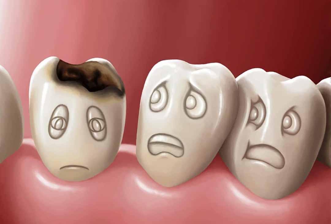 10 bệnh răng miệng phổ biến nhất