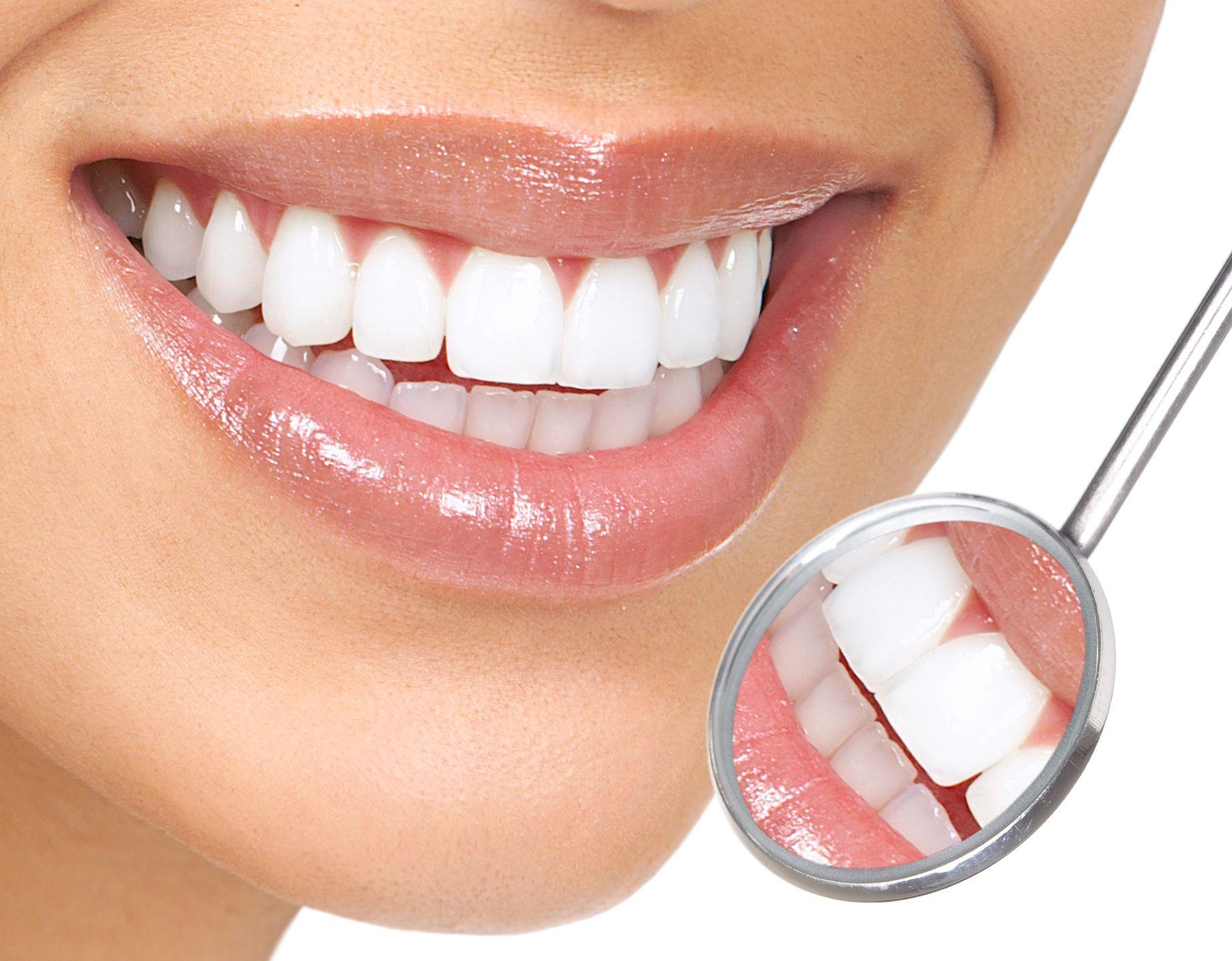 Bọc răng sứ ở đâu uy tín, chất lượng ?