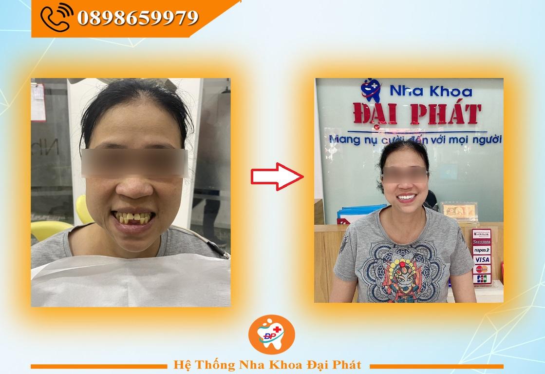 Hình ảnh khách hàng làm răng sứ Zico 2 hàm