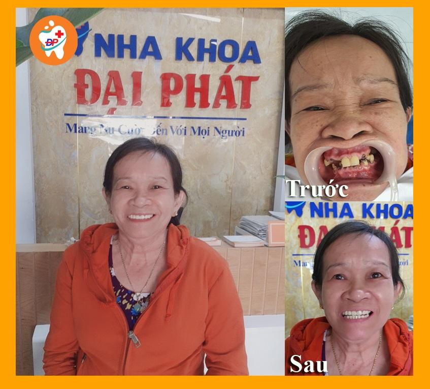 Cô ấy đã hoàn thành răng sứ 2 hàm sau 4 năm tích góp