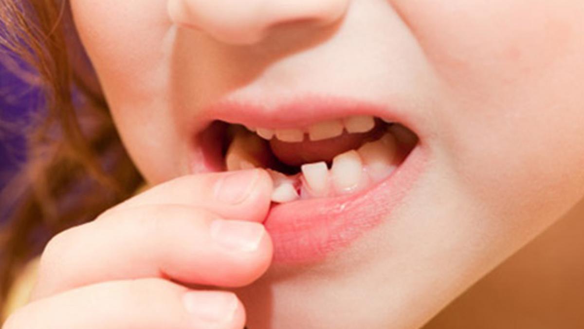 Tầm quan trọng của Răng Sữa